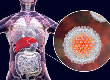 Kronik Hepatit C Tanısı Konuldu Ne Yapmalıyım? 3