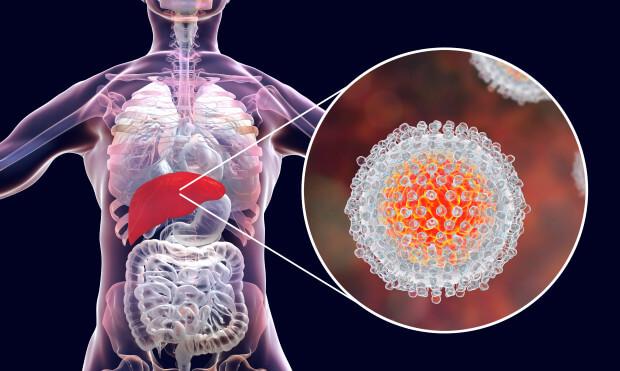 Kronik Hepatit C Tanısı Konuldu Ne Yapmalıyım? 1