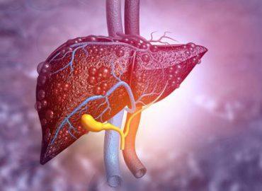Akut Hepatit Tanısı Konuldu Ne Yapmalıyım? 2