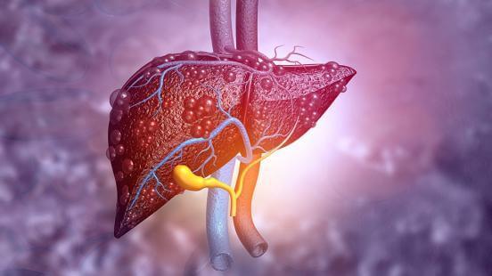 Akut Hepatit Tanısı Konuldu Ne Yapmalıyım? 6