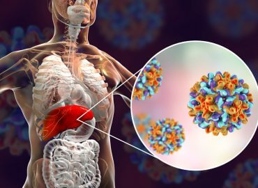 Hepatit B takip edilmezse siroz ve karaciğer kanserine neden olabilir 1