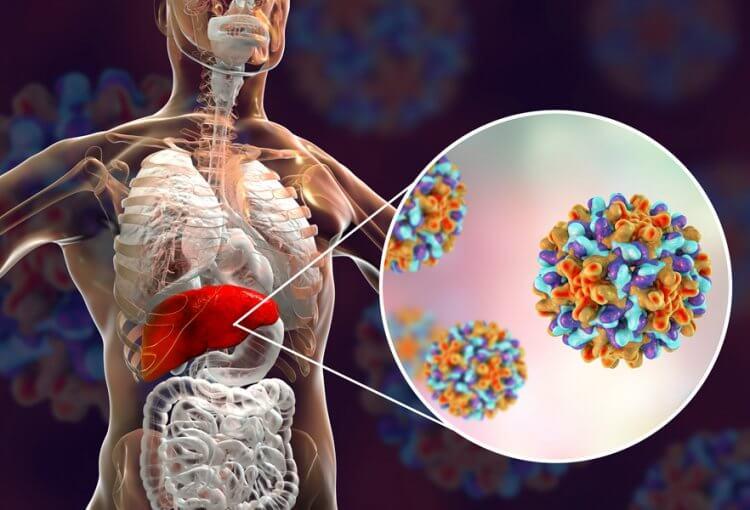 Hepatit B takip edilmezse siroz ve karaciğer kanserine neden olabilir 2